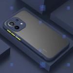 قاب گوشی شیائومی Mi 11 Lite مدل پشت مات محافظ لنزدار